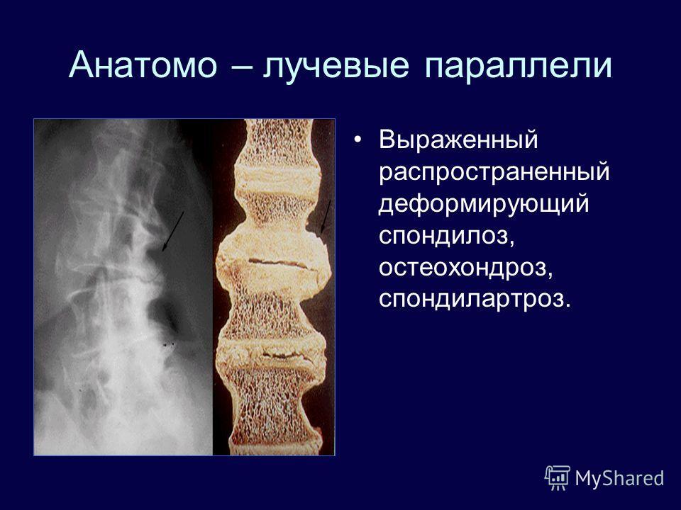 Анатомо – лучевые параллели Выраженный распространенный деформирующий спондилоз, остеохондроз, спондилартроз.