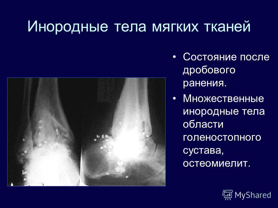 Инородные тела мягких тканей Состояние после дробового ранения. Множественные инородные тела области голеностопного сустава, остеомиелит.