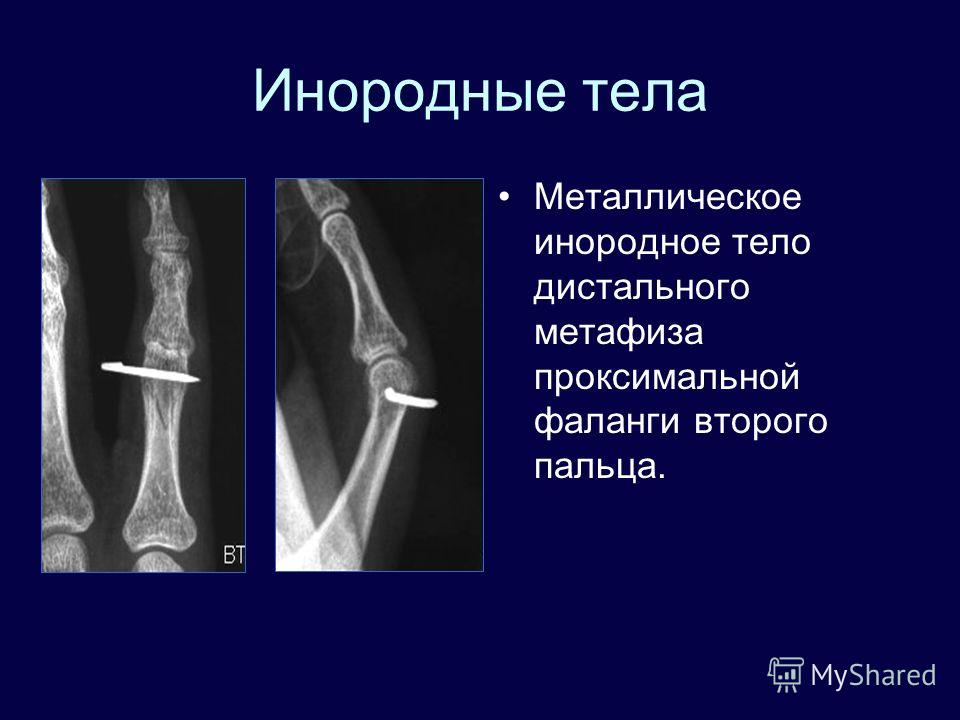 Инородные тела Металлическое инородное тело дистального метафиза проксимальной фаланги второго пальца.