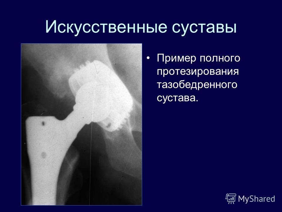 Искусственные суставы Пример полного протезирования тазобедренного сустава.