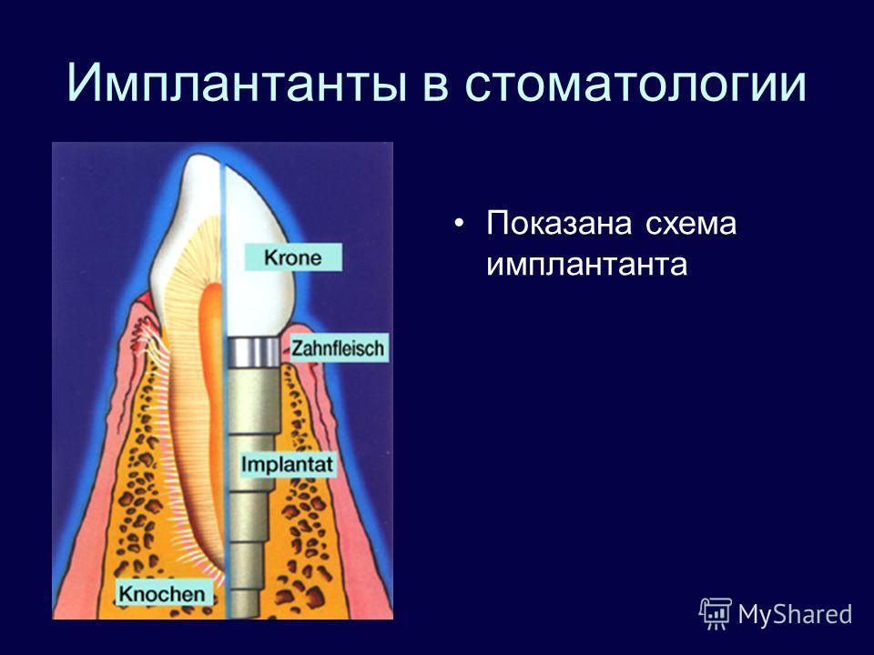 Имплантанты в стоматологии Показана схема имплантанта