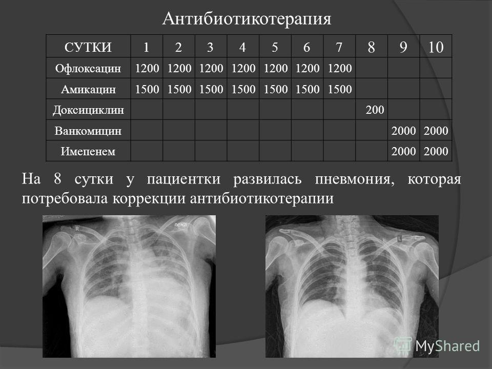 Антибиотикотерапия СУТКИ1234567 8910 Офлоксацин1200 Амикацин1500 Доксициклин200 Ванкомицин2000 Имепенем2000 На 8 сутки у пациентки развилась пневмония, которая потребовала коррекции антибиотикотерапии