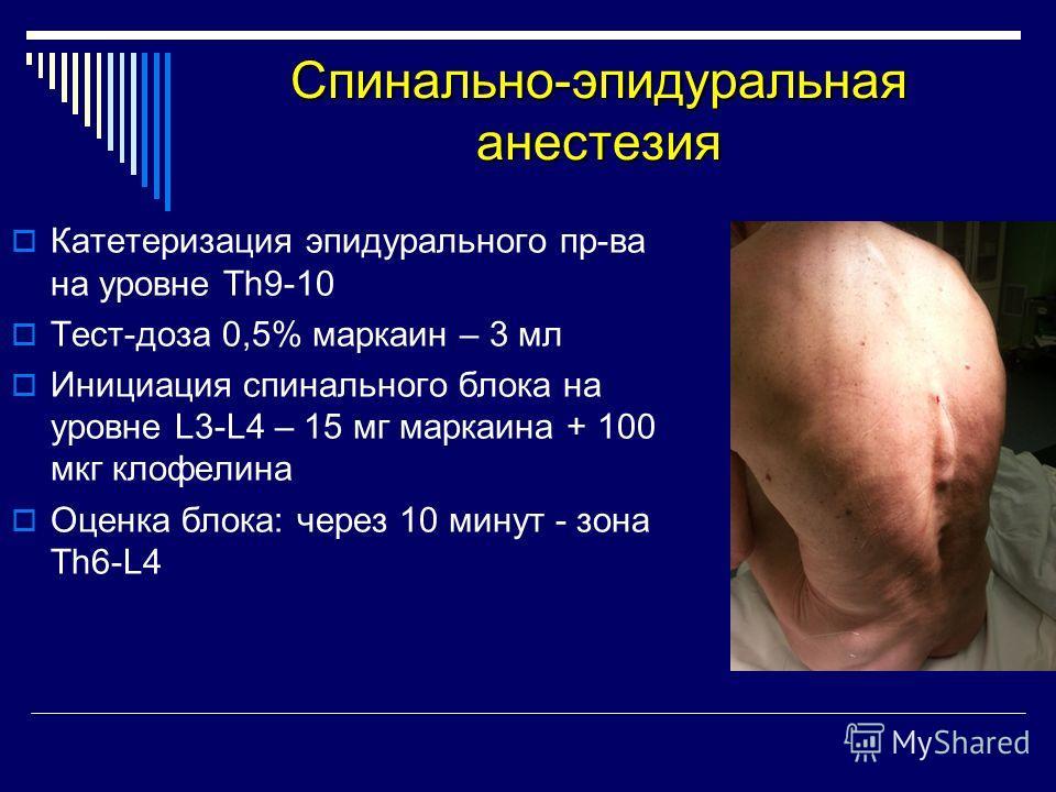 Спинально-эпидуральная анестезия Катетеризация эпидурального пр-ва на уровне Тh9-10 Тест-доза 0,5% маркаин – 3 мл Инициация спинального блока на уровне L3-L4 – 15 мг маркаина + 100 мкг клофелина Оценка блока: через 10 минут - зона Th6-L4