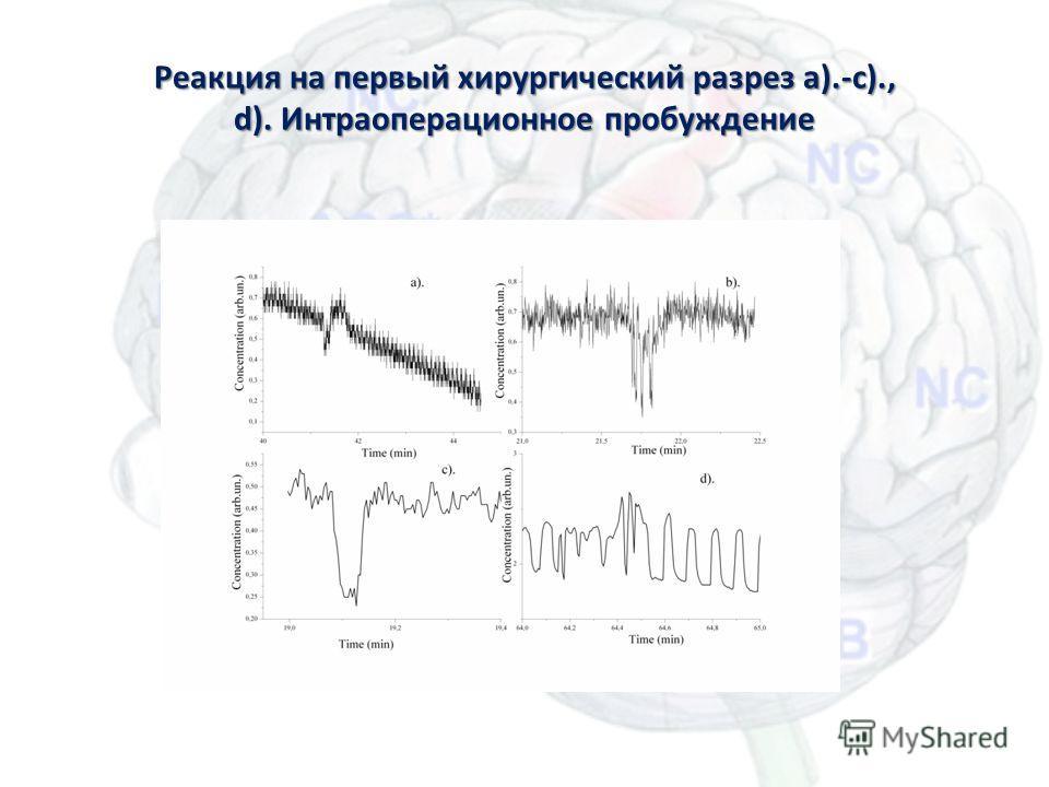 Реакция на первый хирургический разрез a).-c)., d). Интраоперационное пробуждение Масс-спектрометрия для анестезиологии35