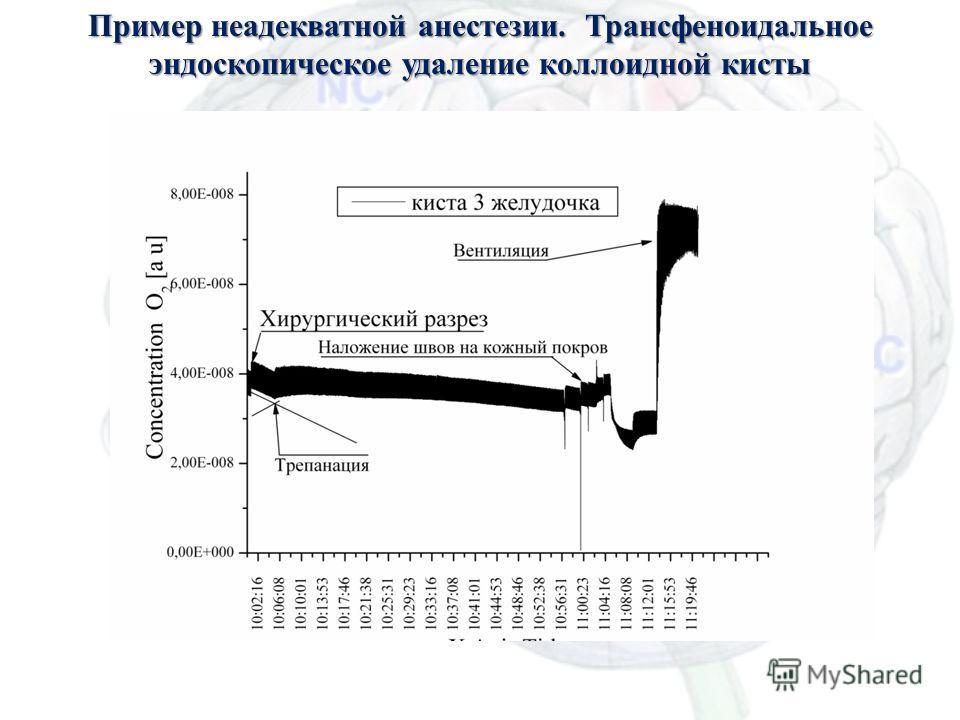 Масс-спектрометрия для анестезиологии Пример неадекватной анестезии. Трансфеноидальное эндоскопическое удаление коллоидной кисты 36