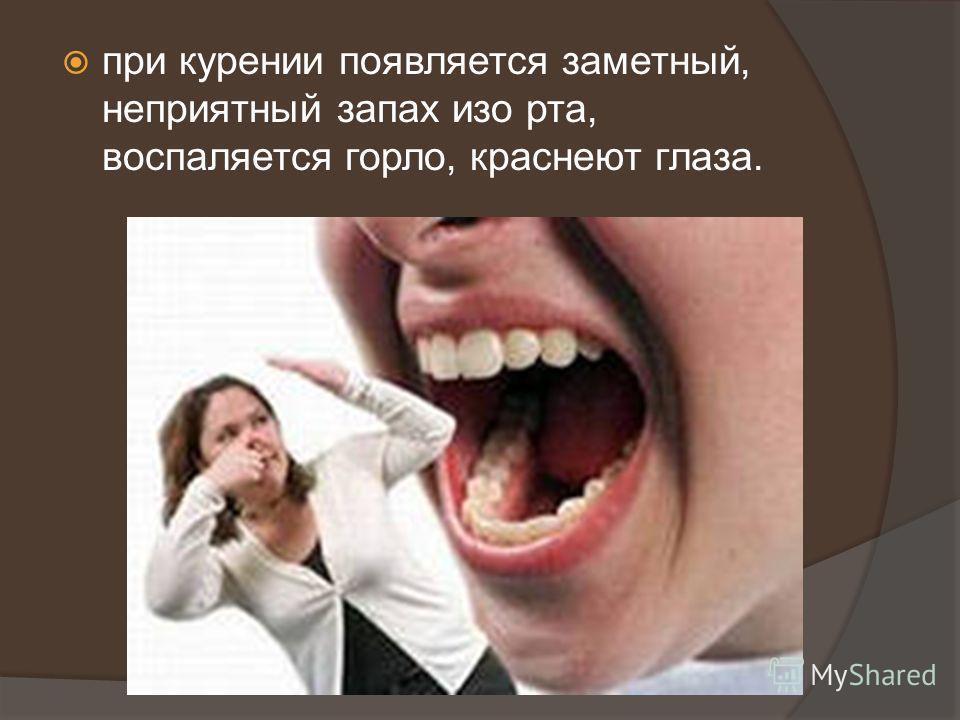 есть ли запах изо рта при фарингите
