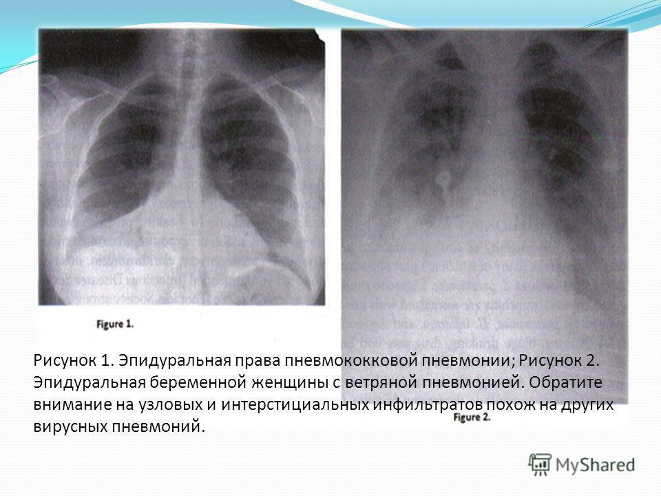Рисунок 1. Эпидуральная права пневмококковой пневмонии; Рисунок 2. Эпидуральная беременной женщины с ветряной пневмонией. Обратите внимание на узловых и интерстициальных инфильтратов похож на других вирусных пневмоний.