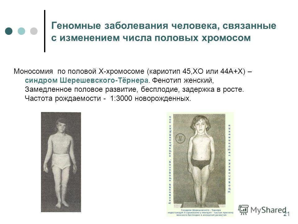 Моносомия по половой Х-хромосоме (кариотип 45,ХО или 44А+Х) – синдром Шерешевского-Тёрнера. Фенотип женский, Замедленное половое развитие, бесплодие, задержка в росте. Частота рождаемости - 1:3000 новорожденных. Геномные заболевания человека, связанн
