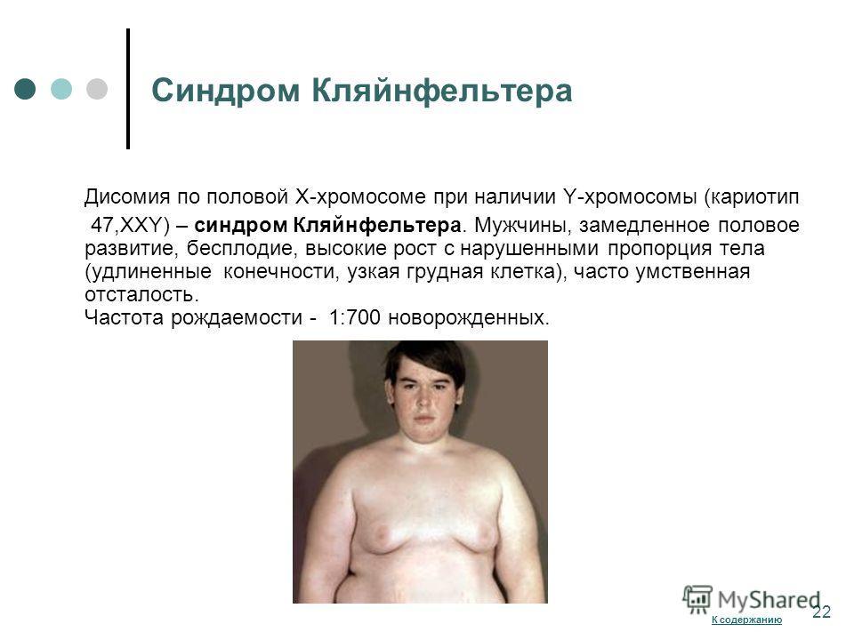 Синдром Кляйнфельтера Дисомия по половой Х-хромосоме при наличии Y-хромосомы (кариотип 47,ХХY) – синдром Кляйнфельтера. Мужчины, замедленное половое развитие, бесплодие, высокие рост с нарушенными пропорция тела (удлиненные конечности, узкая грудная
