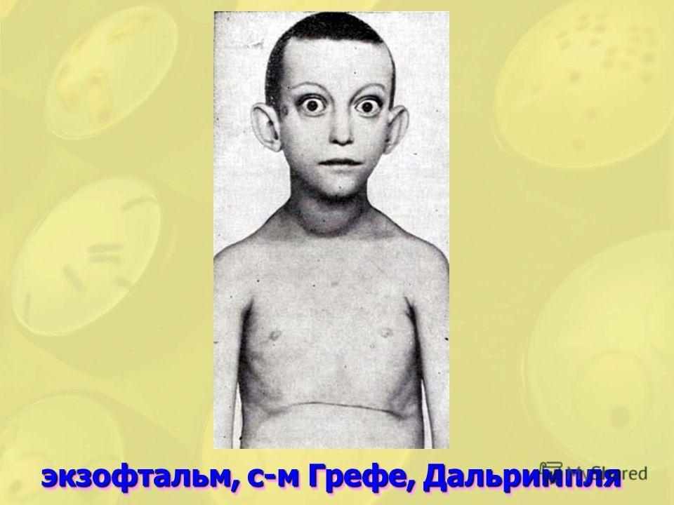 экзофтальм, с-м Грефе, Дальримпля