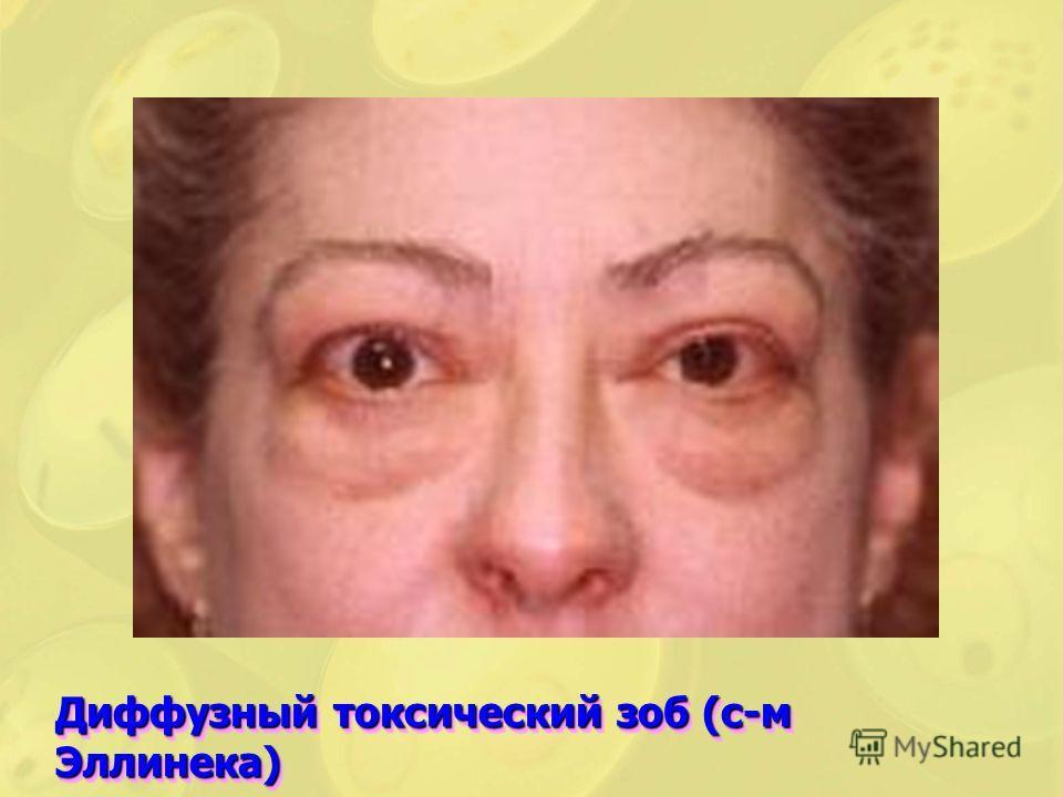 Диффузный токсический зоб (с-м Эллинека)