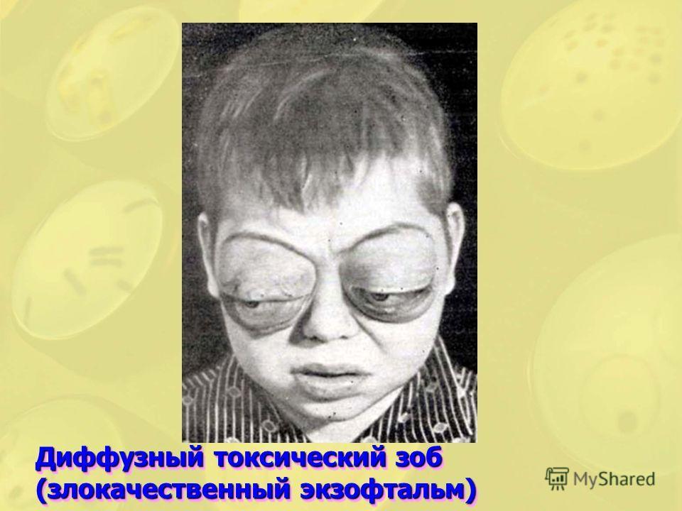 Диффузный токсический зоб (злокачественный экзофтальм)
