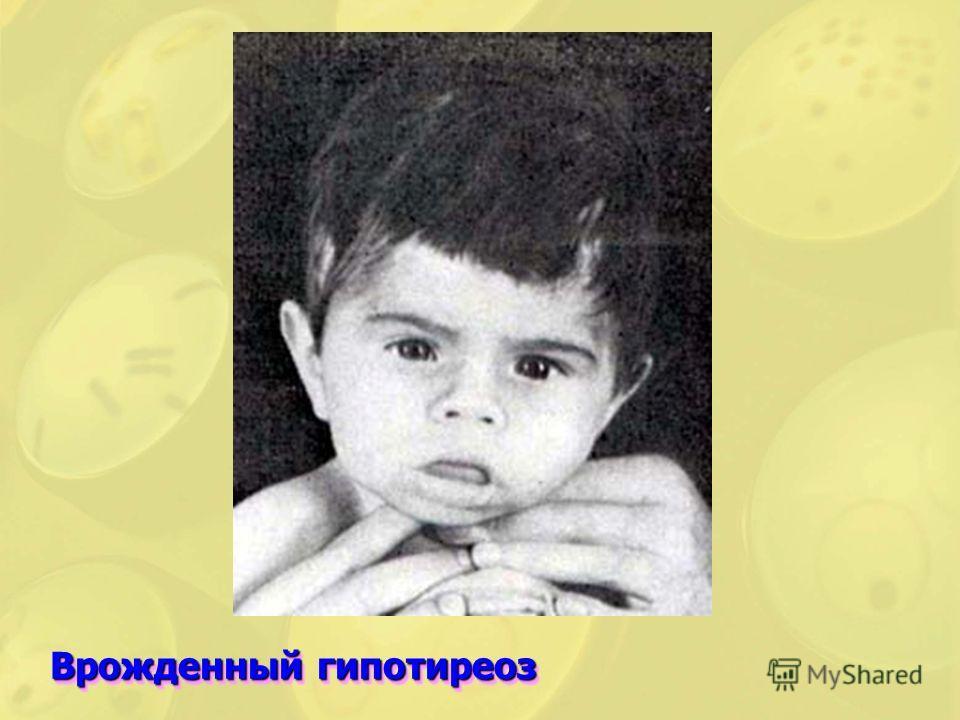 Врожденный гипотиреоз