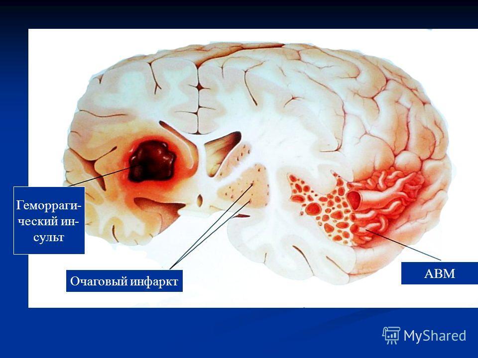 Геморраги- ческий ин- сульт Очаговый инфаркт АВМ