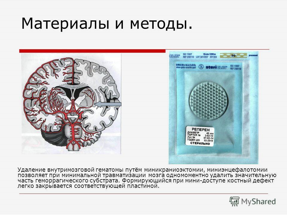 Материалы и методы. Удаление внутримозговой гематомы путём миникраниоэктомии, миниэнцефалотомии позволяет при минимальной травматизации мозга одномоментной удалить значительную часть геморрагического субстрата. Формирующийся при мини-доступе костный