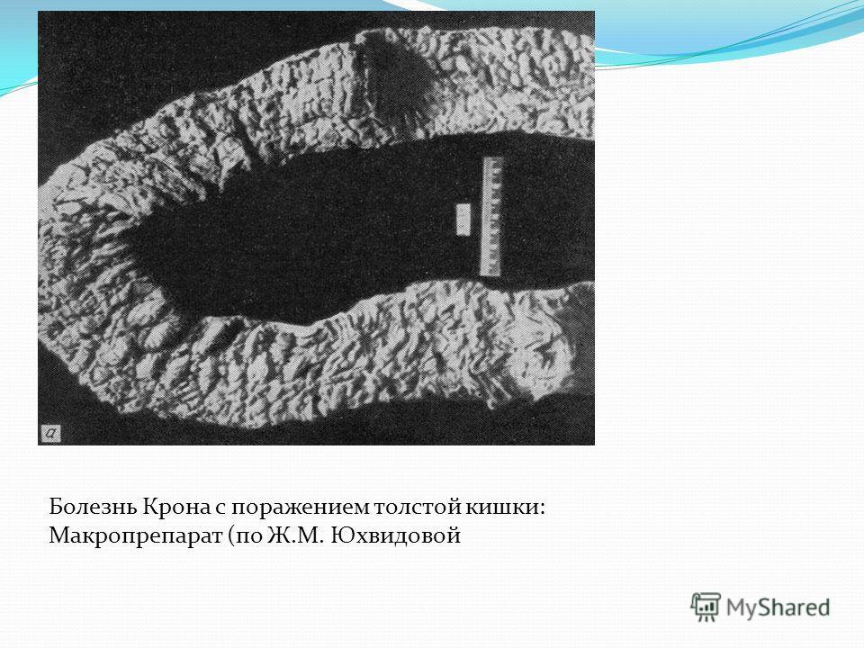 Болезнь Крона с поражением толстой кишки: Макропрепарат (по Ж.М. Юхвидовой