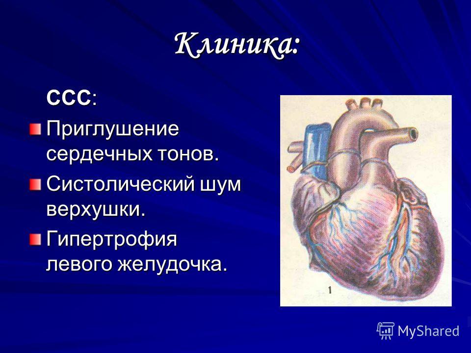 Клиника: ССС: Приглушение сердечных тонов. Систолический шум верхушки. Гипертрофия левого желудочка.