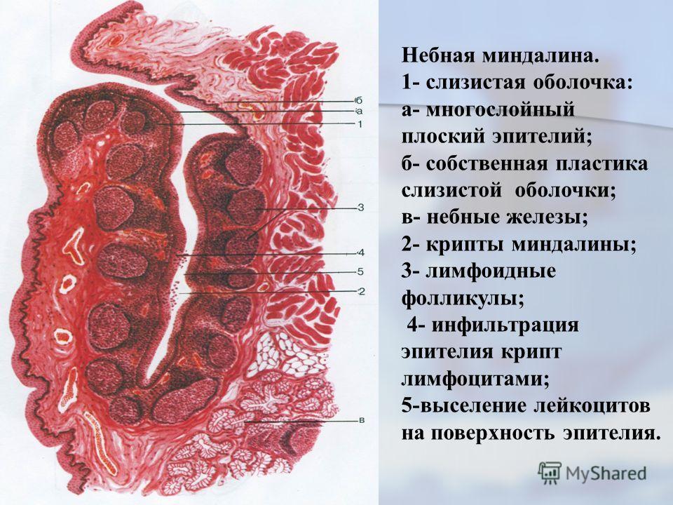 Небная миндалина. 1- слизистая оболочка: а- многослойный плоский эпителий; б- собственная пластика слизистой оболочки; в- небные железы; 2- крипты миндалины; 3- лимфоидные фолликулы; 4- инфильтрация эпителия крипт лимфоцитами; 5-выселение лейкоцитов