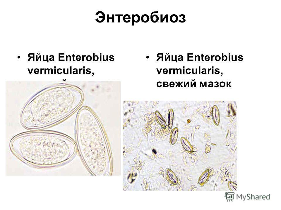 Энтеробиоз Яйца Enterobius vermicularis, свежий мазок