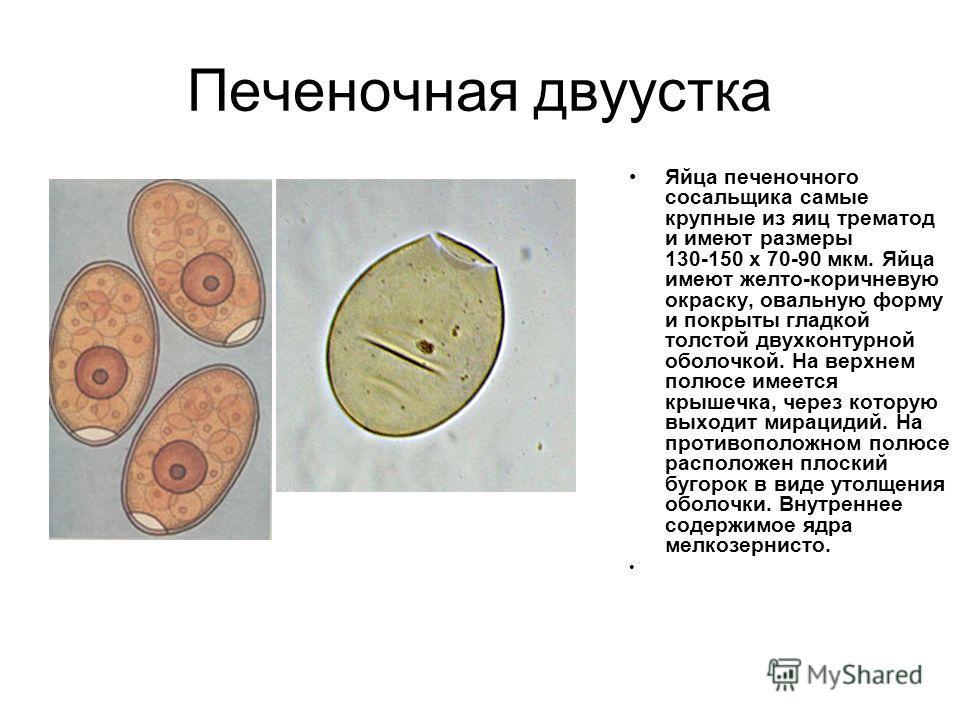 размеры яиц крупных глистов