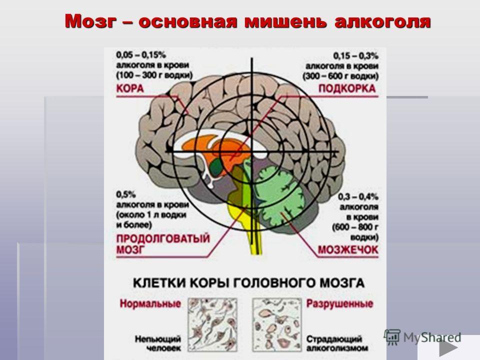 Мозг – основная мишень алкоголя