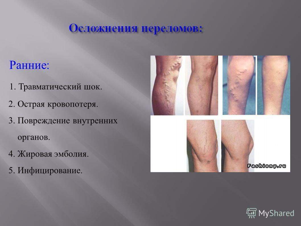 Осложнения переломов: Ранние: 1. Травматический шок. 2. Острая кровопотеря. 3. Повреждение внутренних органов. 4. Жировая эмболия. 5. Инфицирование.