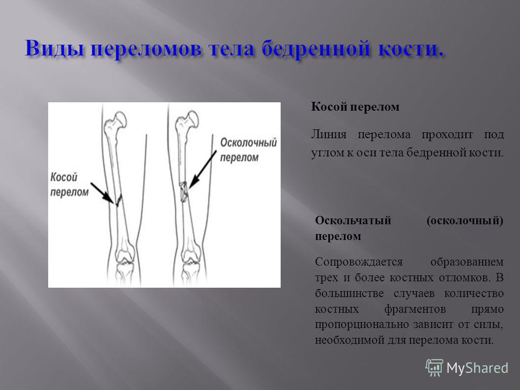 Виды переломов тела бедренной кости. Косой перелом Линия перелома проходит под углом к оси тела бедренной кости. Оскольчатый (осколочный) перелом Сопровождается образованием трех и более костных отломков. В большинстве случаев количество костных фраг