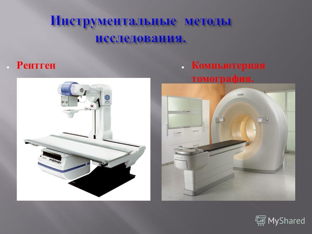 Инструментальные методы исследования. Рентген Компьютерная томография.