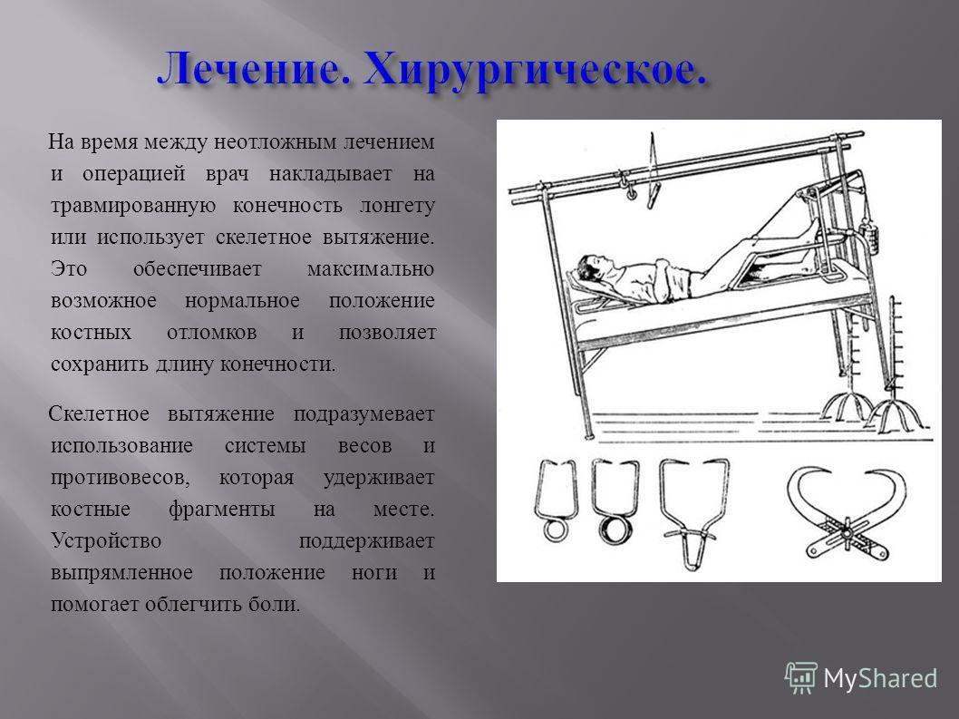 Лечение. Хирургическое. На время между неотложным лечением и операцией врач накладывает на травмированную конечность лонгету или использует скелетное вытяжение. Это обеспечивает максимально возможное нормальное положение костных отломков и позволяет