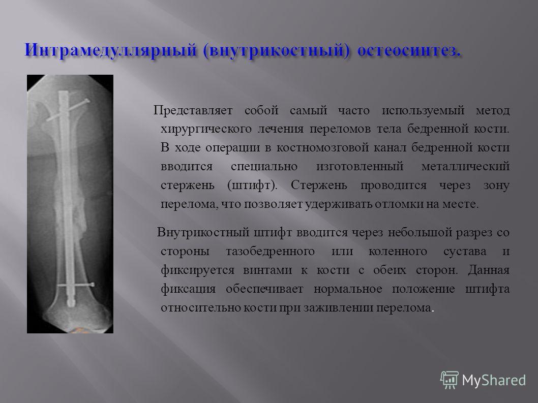 Интрамедуллярный (внутрикостный) остеосинтез. Представляет собой самый часто используемый метод хирургического лечения переломов тела бедренной кости. В ходе операции в костномозговой канал бедренной кости вводится специально изготовленный металличес