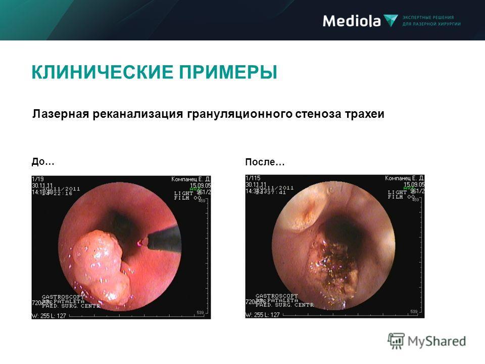 КЛИНИЧЕСКИЕ ПРИМЕРЫ До… После… Лазерная реканализация грануляционного стеноза трахеи