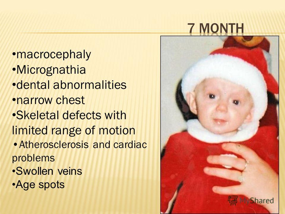 macrocephaly Micrognathia dental abnormalities narrow chest Skeletal defects with limited range of motion Atherosclerosis and cardiac problems Swollen veins Age spots