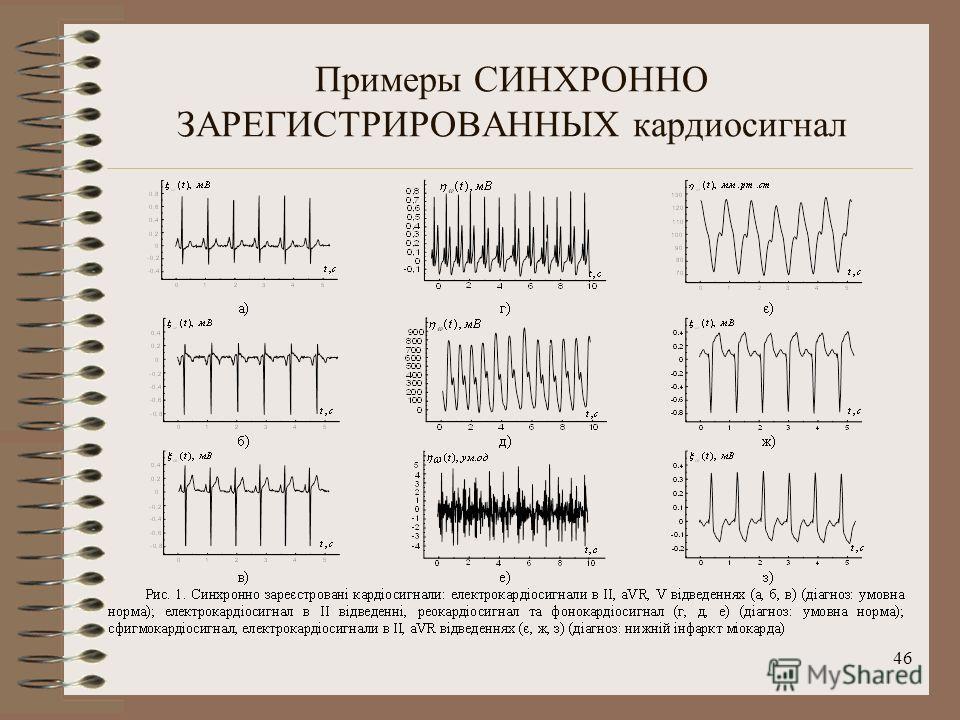 46 Примеры СИНХРОННО ЗАРЕГИСТРИРОВАННЫХ кардиосигнал