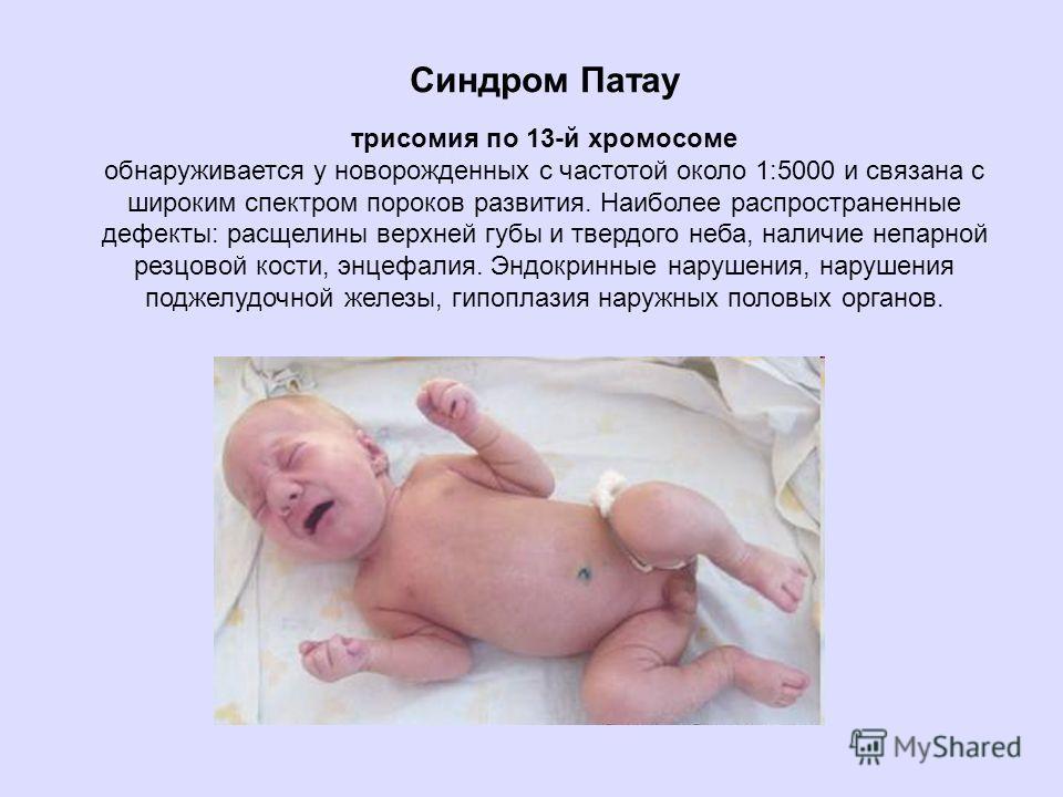 Синдром Патау трисомия по 13-й хромосоме обнаруживается у новорожденных с частотой около 1:5000 и связана с широким спектром пороков развития. Наиболее распространенные дефекты: расщелины верхней губы и твердого неба, наличие непарной резцовой кости,