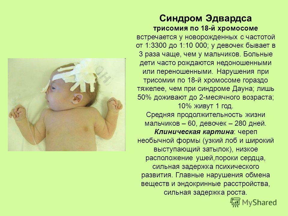 Синдром Эдвардса трисомия по 18-й хромосоме встречается у новорожденных с частотой от 1:3300 до 1:10 000; у девочек бывает в 3 раза чаще, чем у мальчиков. Больные дети часто рождаются недоношенными или переношенными. Нарушения при трисомии по 18-й хр