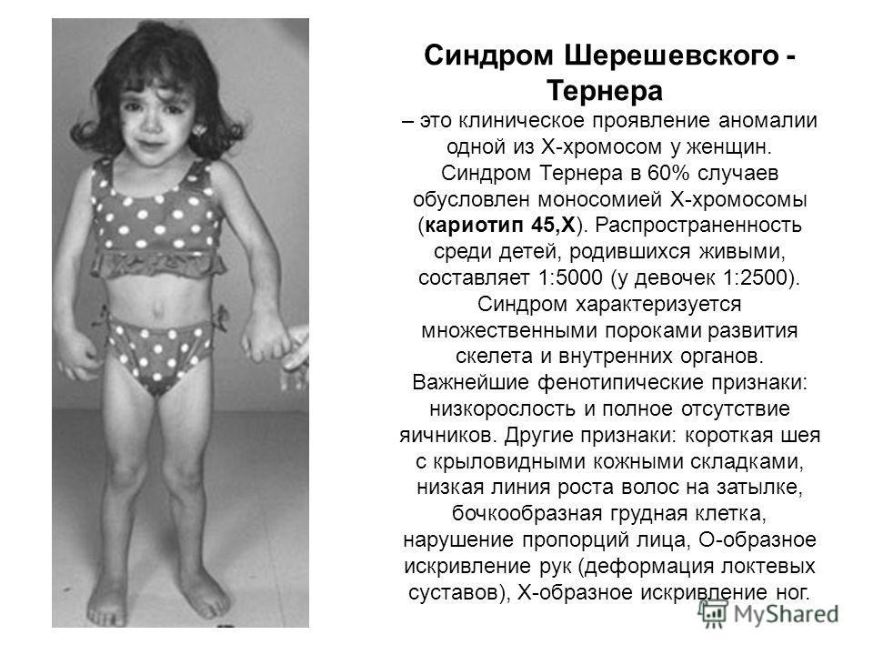 Синдром Шерешевского - Тернера – это клиническое проявление аномалии одной из X-хромосом у женщин. Синдром Тернера в 60% случаев обусловлен моносомией X-хромосомы (кариотип 45,X). Распространенность среди детей, родившихся живыми, составляет 1:5000 (