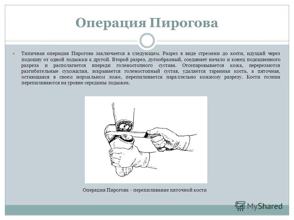 Операция Пирогова Типичная операция Пирогова заключается в следующем. Разрез в виде стремени до кости, идущий через подошву от одной лодыжки к другой. Второй разрез, дугообразный, соединяет начало и конец подошвенного разреза и располагается впереди