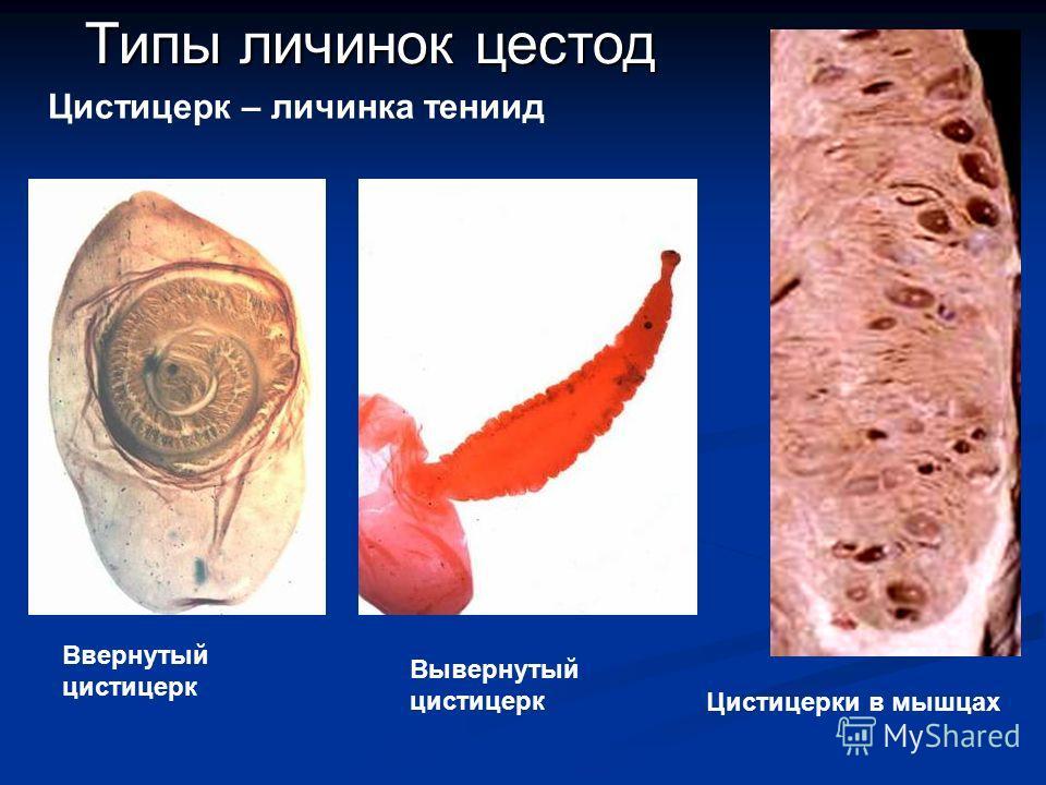найти Типы личинок цестод Ввернутый цистицерк Вывернутый цистицерк Цистицерки в мышцах Цистицерк – личинка тениид