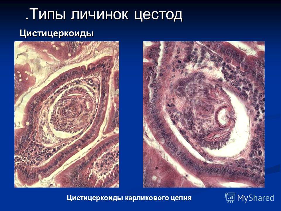 найти.Типы личинок цестод Цистицеркоиды карликового цепня Цистицеркоиды