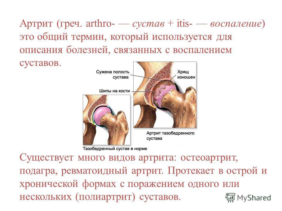 Артрит (греч. arthro- сустав + itis- воспаление) это общий термин, который используется для описания болезней, связанных с воспалением суставов. Существует много видов артрита: остеоартрит, подагра, ревматоидный артрит. Протекает в острой и хроническ