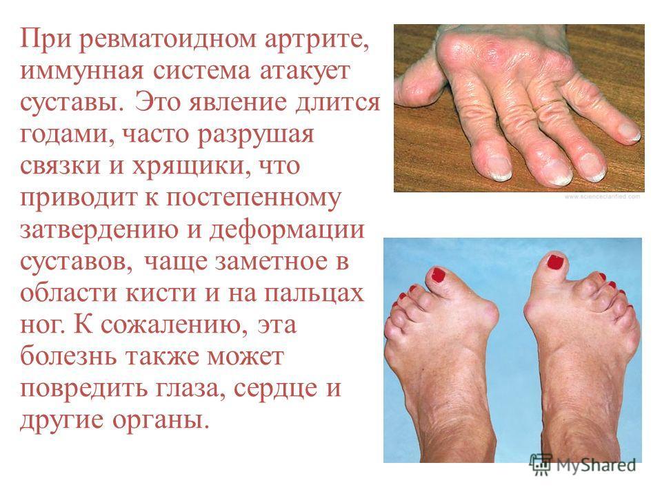 При ревматоидном артрите, иммунная система атакует суставы. Это явление длится годами, часто разрушая связки и хрящики, что приводит к постепенному затвердению и деформации суставов, чаще заметное в области кисти и на пальцах ног. К сожалению, эта бо