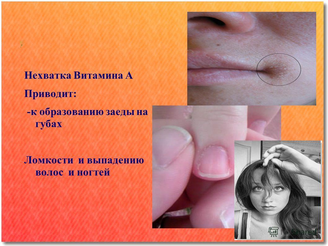 Нехватка Витамина А Приводит: -к образованию заеды на губах Ломкости и выпадению волос и ногтей