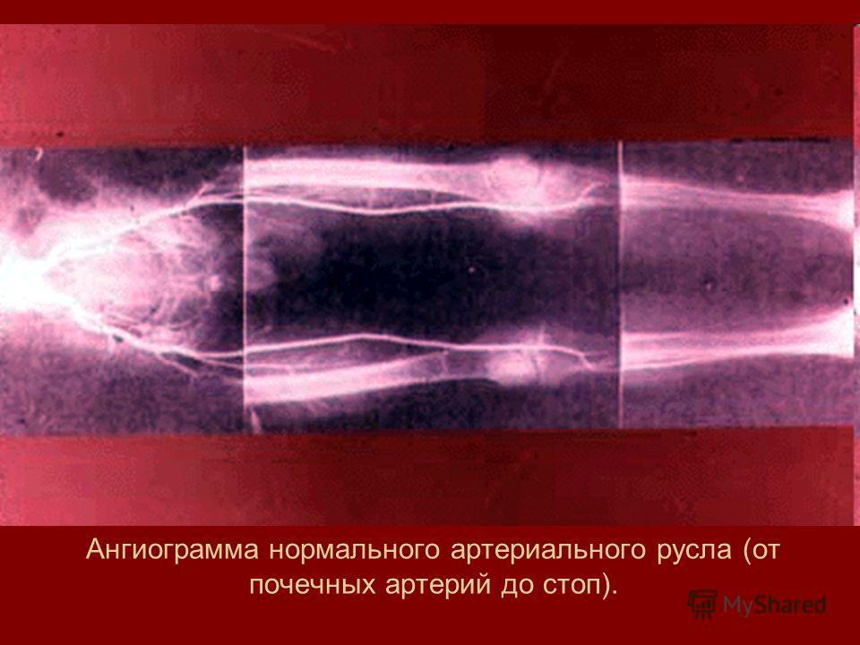 Ангиограмма нормального артериального русла (от почечных артерий до стоп).