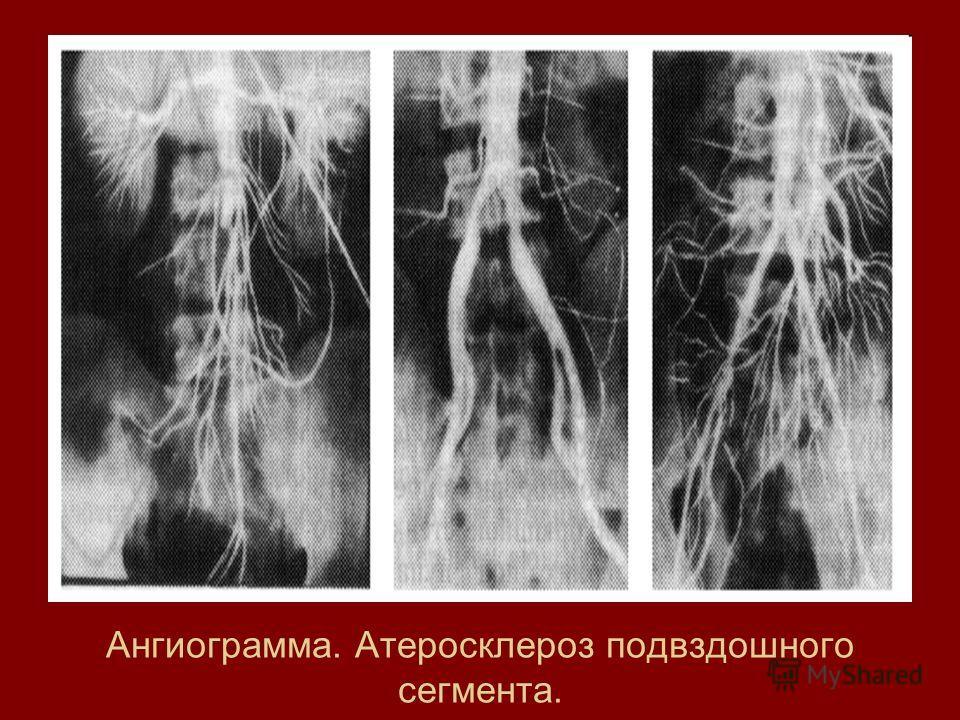 Ангиограмма. Атеросклероз подвздошного сегмента.