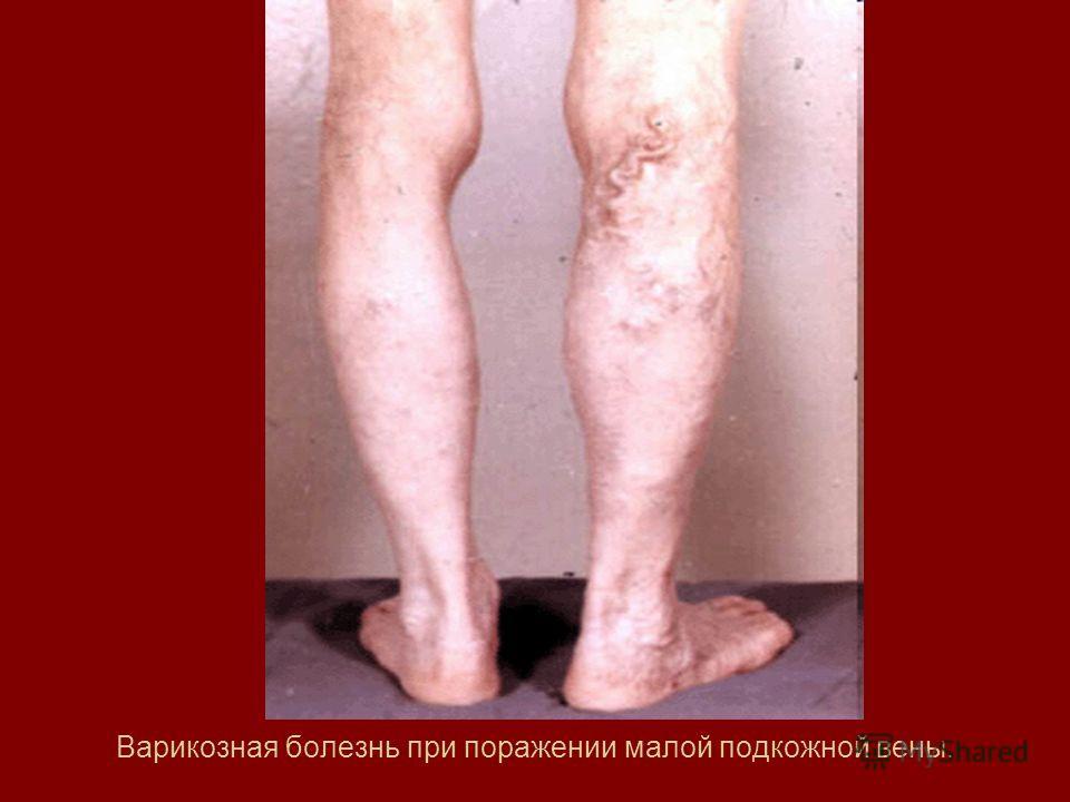 Варикозная болезнь при поражении малой подкожной вены.