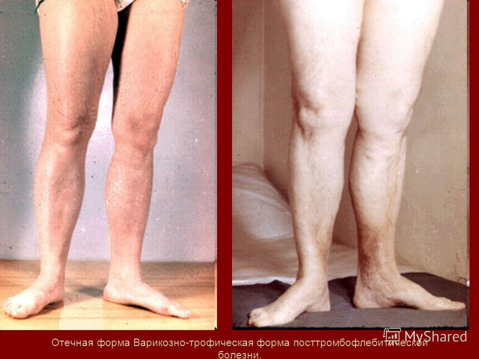 Отечная форма Варикозно-трофическая форма посттромбофлебитической болезни.
