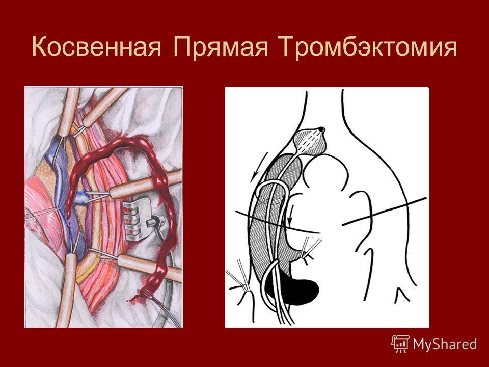Косвенная Прямая Тромбэктомия