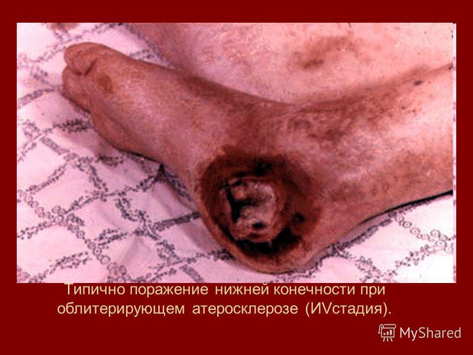 Типично поражение нижней конечности при облитерирующем атеросклерозе (ИVстадия).