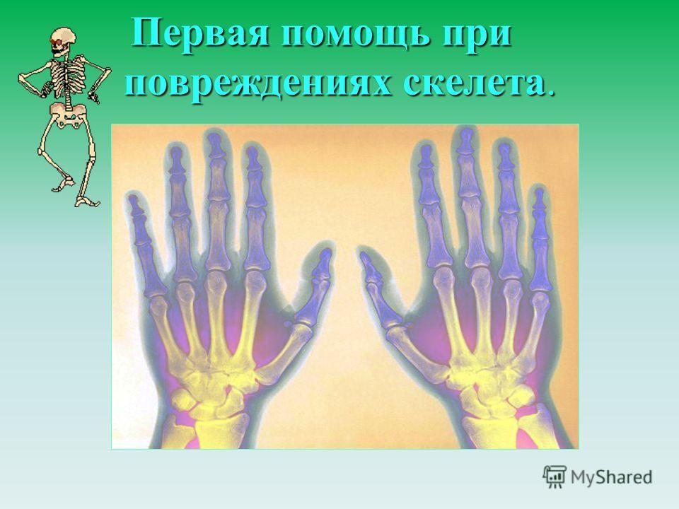Первая помощь при повреждениях скелета. Первая помощь при повреждениях скелета.