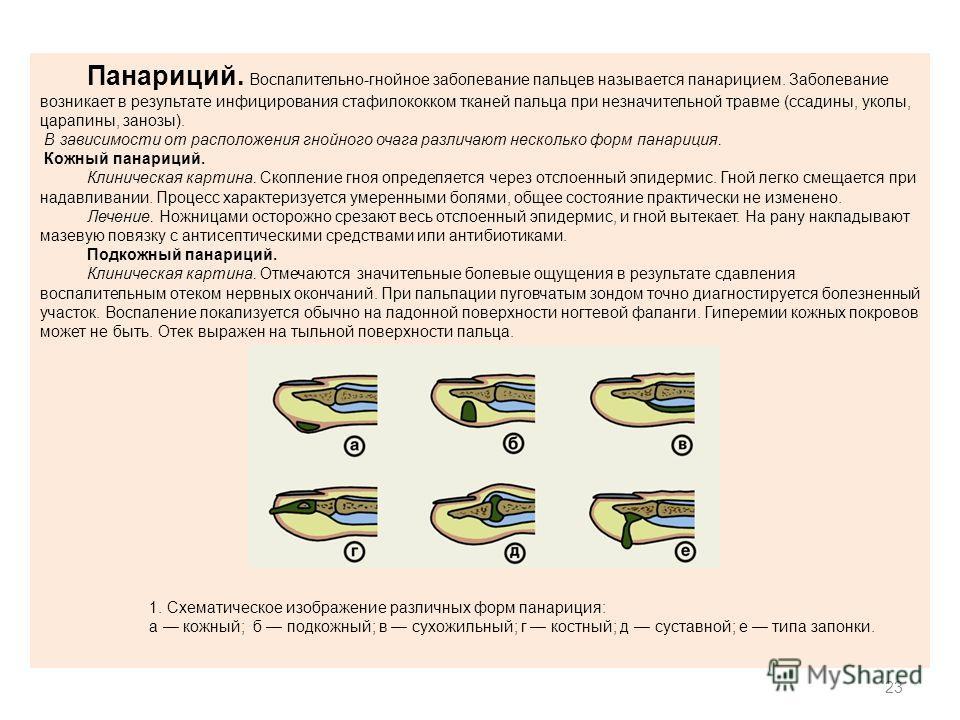 23 Панариций. Воспалительно-гнойное заболевание пальцев называется панарицием. Заболевание возникает в результате инфицирования стафилококком тканей пальца при незначительной травме (ссадины, уколы, царапины, занозы). В зависимости от расположения гн
